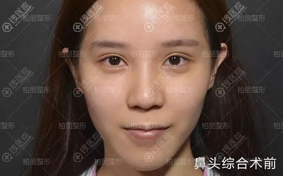 做鼻头综合前的大鼻头照片