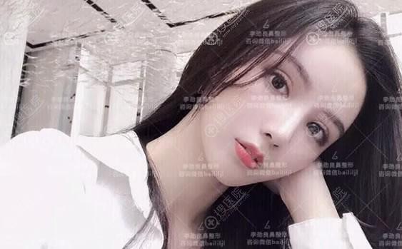 北京柏丽鼻头鼻翼缩小案例6个月效果