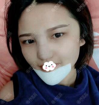 惠州瑞芙臣刘丹虹硅胶假体隆鼻综合整形+玻尿酸丰下巴术后效果