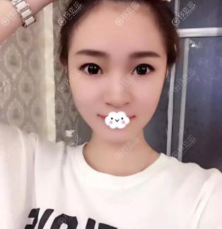 南京光尔美整形张海霞硅胶假体隆鼻真人案例