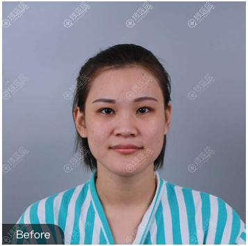 隆鼻整形术前照片