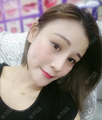 南京康美李智明做的隆鼻子和脂肪填充案例