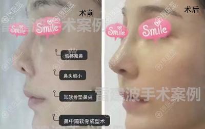雷建波鼻部修复手术后对比