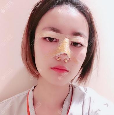 在上海yestar做完双眼皮隆鼻两天恢复效果图