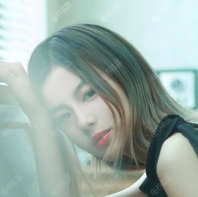 上海艺星许炎龙双眼皮隆鼻案例四个月反馈效果