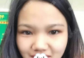 惠州瑞芙臣隆鼻怎么样?刘丹虹硅胶假体隆鼻综合整形+垫下巴案例