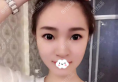 南京隆鼻哪家医院好?南京光尔美整形张海霞硅胶假体隆鼻案例