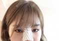 上海天大张景涛整鼻子怎么样?瞧我刚做的鼻综合隆鼻案例图片