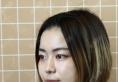 快来看我找上海yestar整形医院许炎龙做的双眼皮隆鼻有多惊艳