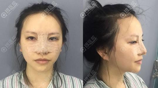 刚做完鼻综合隆鼻手术的图片