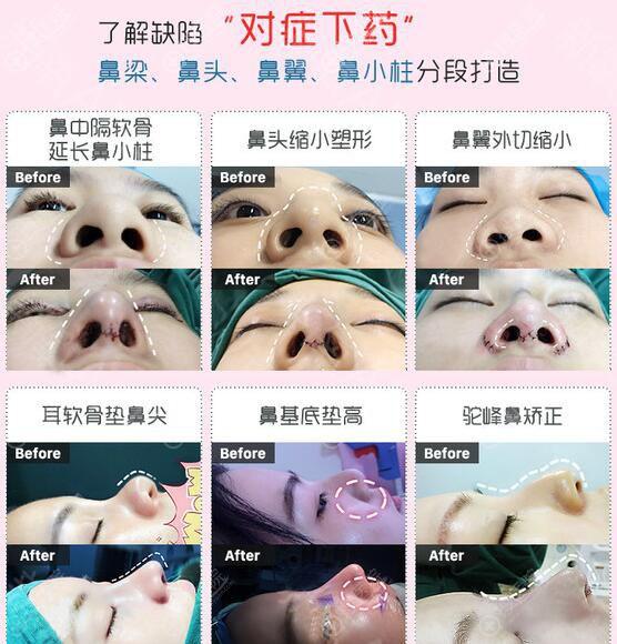 广州艺美李闯鼻头、鼻尖、鼻梁、鼻小柱整形案例