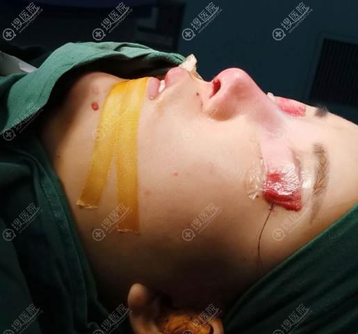 做鼻综合隆鼻术后即刻效果图