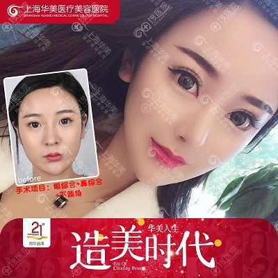 上海华美杨亚益做的双眼皮案例