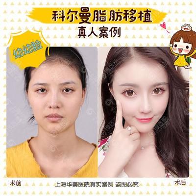 上海华美王荣锡做的自体脂肪面部填充案例
