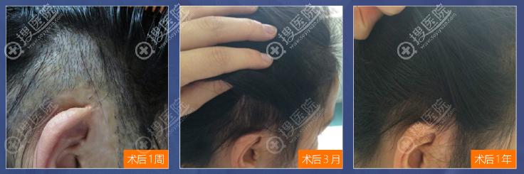 上海华美植发科黄兴勇疤痕植发案例