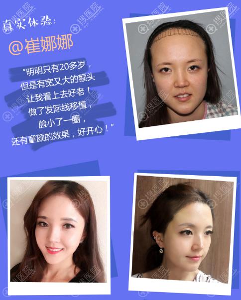 上海华美植发科黄兴勇做的发际线种植案例