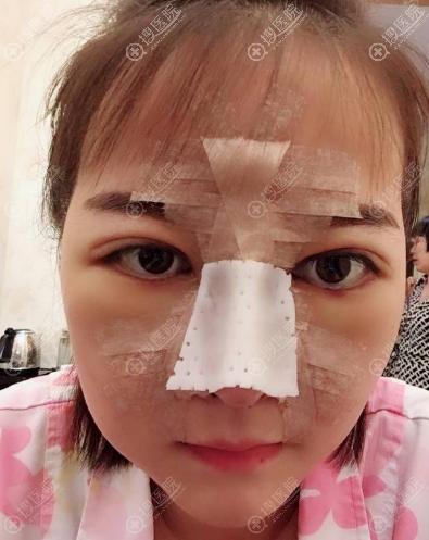 南京克拉美双眼皮隆鼻术后效果图