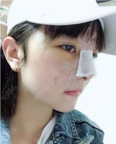 南京克拉美陈明亮隆鼻术后4天照片