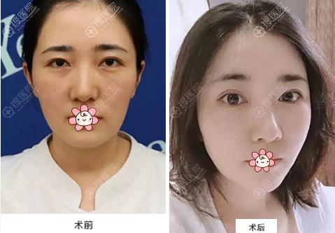 杭州艺星刘尊敏自体脂肪填充面部案例