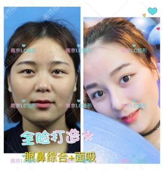 南京柠檬诊所朱晓波做的双眼皮隆鼻案例