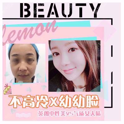 南京柠檬诊所朱晓波自体脂肪面部填充案例