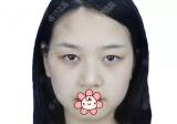 长沙科颜美整形陈咏玲怎么样?双眼皮开眼角素颜自然化妆更美