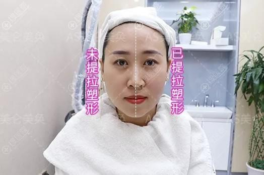 做完半张脸效果对比图