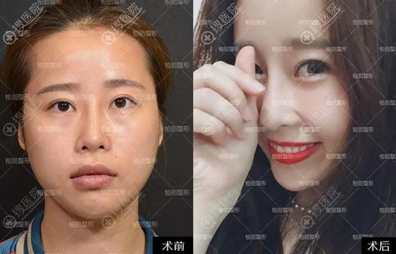李劲良鼻修复和自体脂肪面部填充案例