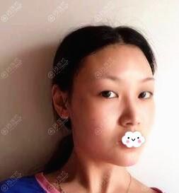苏州星范整形美容肖芳双眼皮真人案例