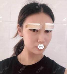 苏州星范整形美容肖芳双眼皮术后效果