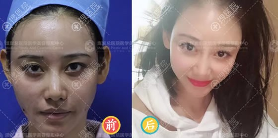 北京煤炭总医院艾红梅脂肪填充案例对比图