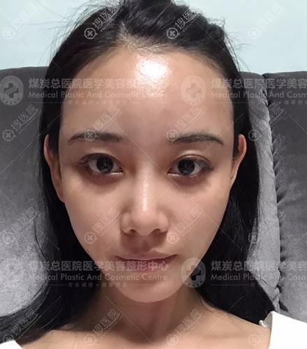 北京煤炭总医院脂肪填充3天后