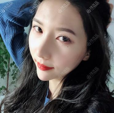 上海瑰康医疗美容医院隆鼻子整形案例