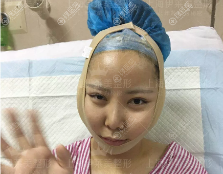 李湘原磨骨案例术后5天自拍