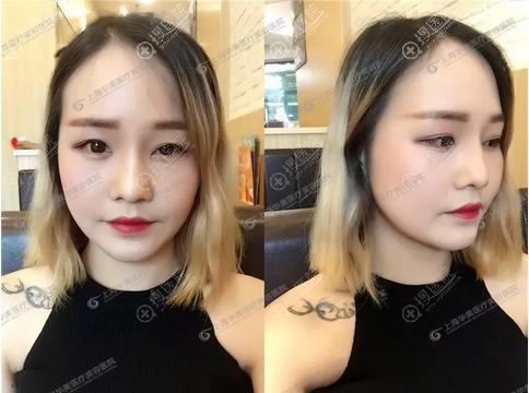 上海华美颧骨下颌角案例术后一个月