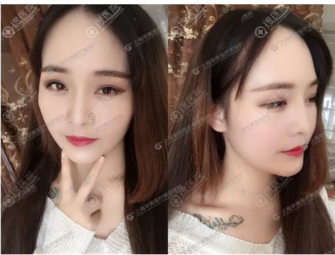上海华美李志海做的长曲线下颌角整形案例