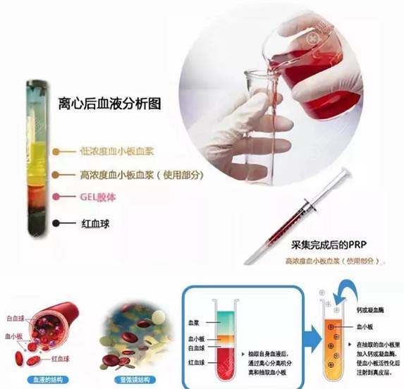 PRP就是高浓度血小板血浆