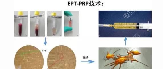 EPT-PRP技术原理及操作过程