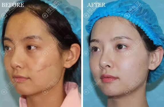 北京延世PRP自体血清祛疤痕美肤案例