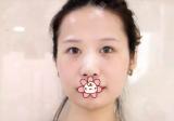 在黑龙江艺星做了双眼皮隆鼻后朋友说我眼睛美到没朋友