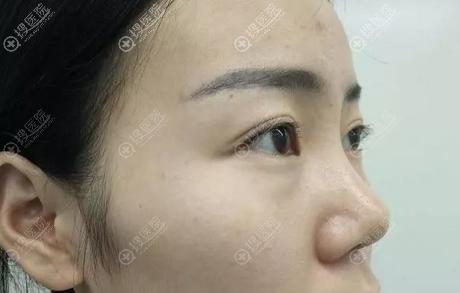 隆鼻术前鼻子侧面特写