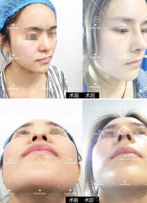 看到这份鼻整形材料科普文,安全起见选择自体肋软骨鼻综合隆鼻
