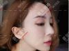 上海首尔丽格范荣杰隆鼻厉害吗?来看鼻子微晶瓷取出修复案例