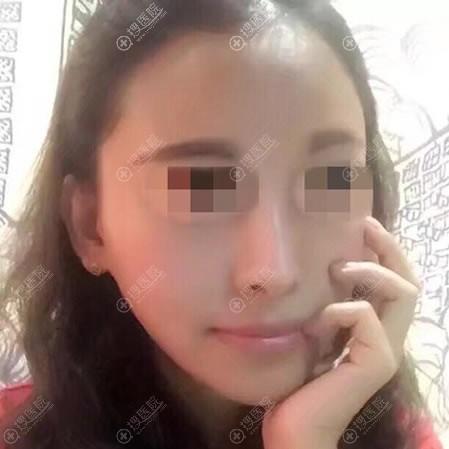 山西整形医院刘晋元脂肪填充30天效果