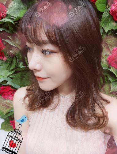 重庆爱思特赵峰做的鼻综合隆鼻案例一个月图片