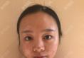 四川成都晶肤医院董薇薇做线雕多少钱?埋线提升22800元附案例