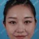 看了重庆华美何春涛的案例后找重庆爱思特赵峰做了鼻综合隆鼻