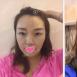 重庆五洲整形眼综合+鼻综合+面部脂肪填充 见证主妇变少女魔法