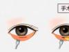 去眼袋内切好还是外切好?什么是内路眶隔释放呢?