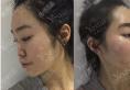 详细记录我去上海yestar找黄泽春做双眼皮和隆鼻的恢复过程